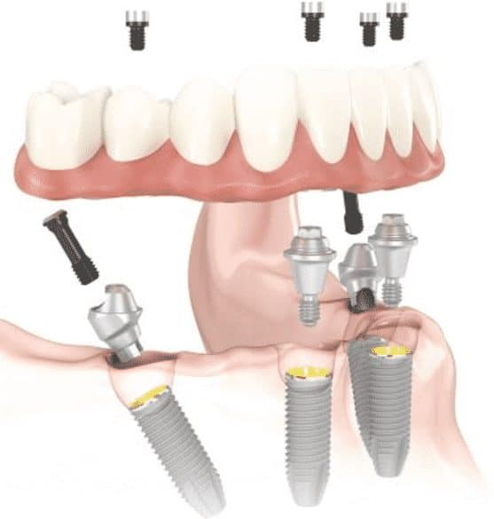 drawing-of-all-on-four-dental-implants