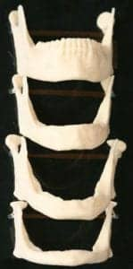 photo of four facial collapse jawbones with progressively more bone loss