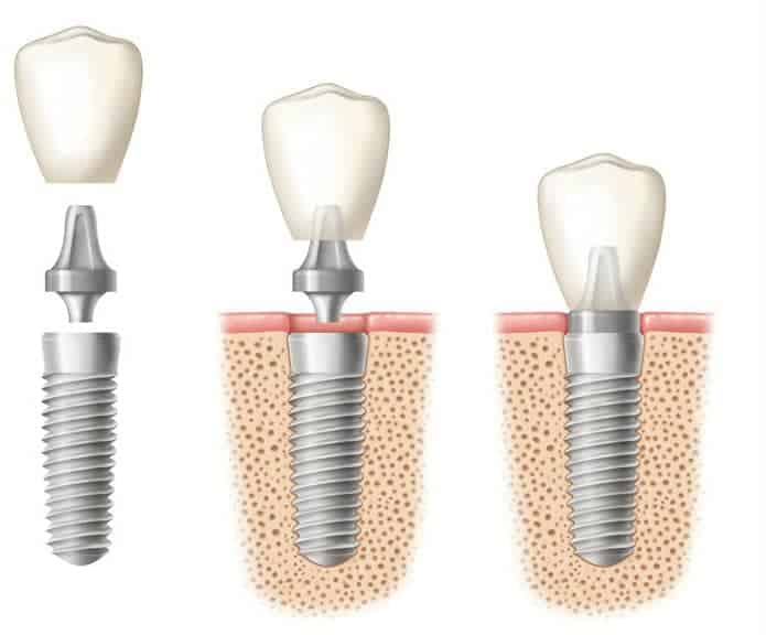 diagram-of-dental-implant-procedure