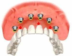 drawing showing six dental implants in the top of the mouth as well as the full dental arch that will be secured by them