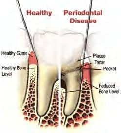 diagram-of-periodontal-disease