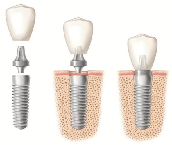 drawing-of-titanium-dental-implants