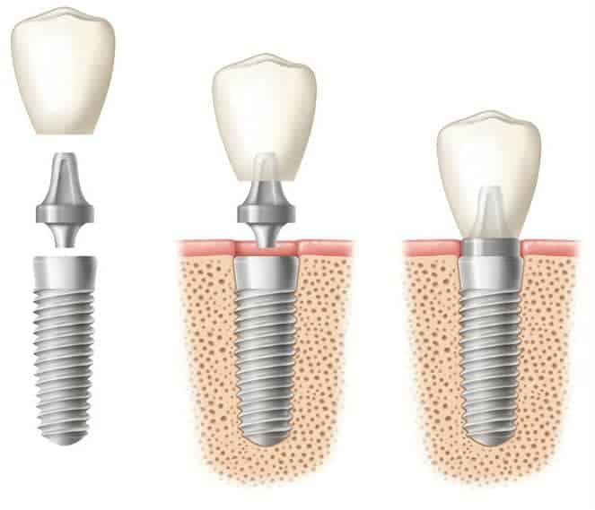 drawing-of-dental-implants