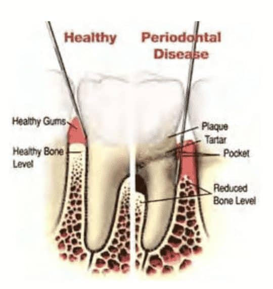 diagram-of-gum-disease