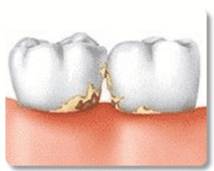 illustration-of-dental-tartar