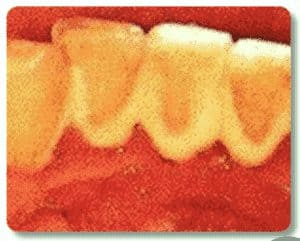 photo-of-dental-tartar-buildup