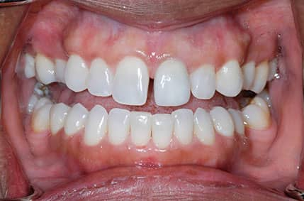 Cosmetic Implant - 2