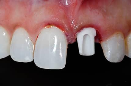 Cosmetic Implant - 1