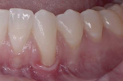 Gum Graft - 1