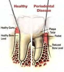 diagram-cosmetic-gum-surgery