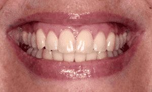 photo of same woman's smile showing how pinhole surgical technique has moved the gums to cover the exposed teeth