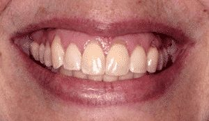 photo of a woman's smile showing recessed gums over several teeth before the use of the pinhole surgical technique
