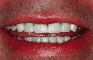 photo of same man's smile with beautiful restorations