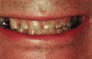 photo of a man's smile with extremely worn teeth