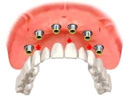 illustration of implant overdentures
