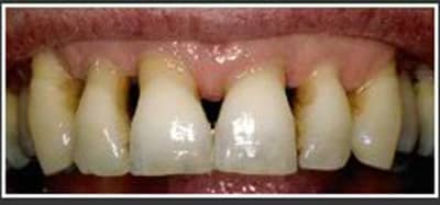 an image with gum disease