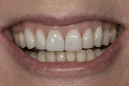 Cosmetic Crown Lengthening - 2