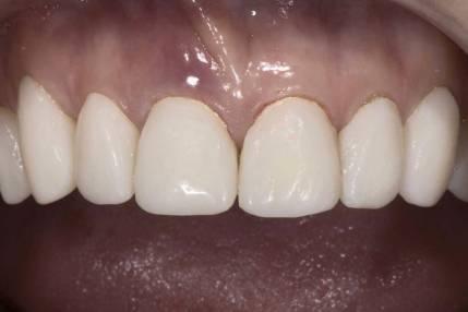 Cosmetic Crown Lengthening - 1