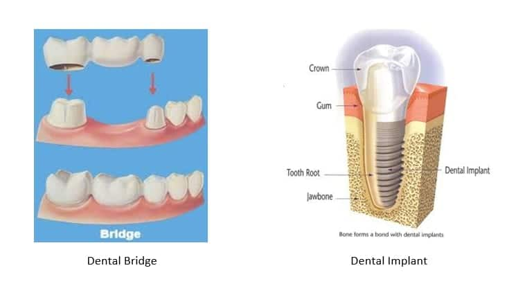 image of a dental bridge on the left and a dental implant on the right