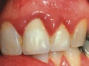 an image showing the resutl of thick dental crowns