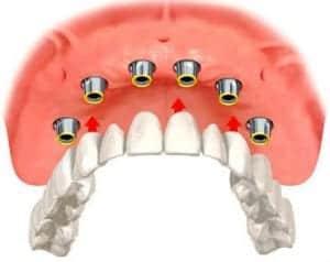 Implant overdentures